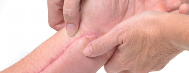How Do You Soften Scar Tissue?