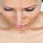Melasma Treatment: How to Fade Hyperpigmentation