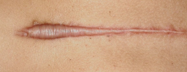 What Are Hypertrophic Scars?