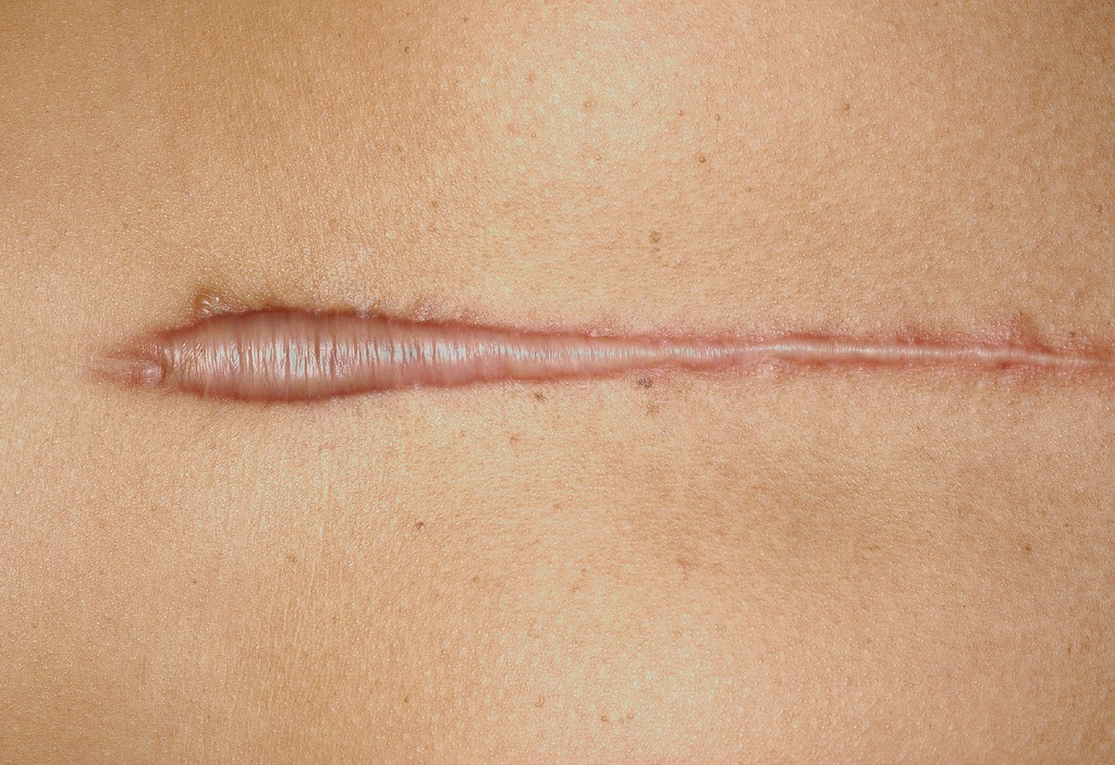 What Are Hypertrophic Scars? - Scars and Spots