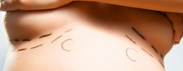 Breast Reconstruction Questions and Answers