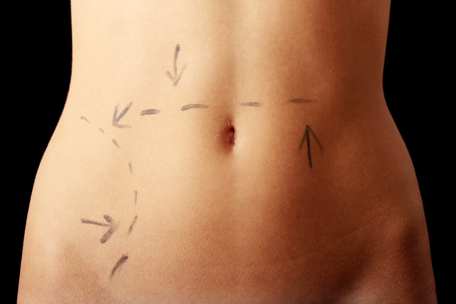 How to minimize liposuction scars scars and spots