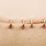 Get Rid of Hysterectomy Scars