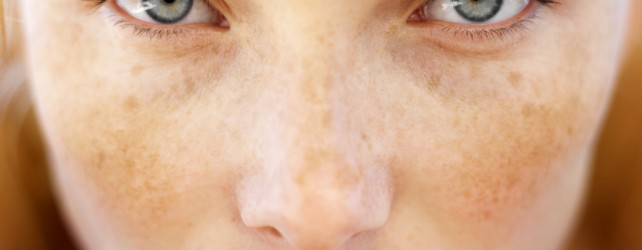 What is the Difference Between Freckles and Age Spots
