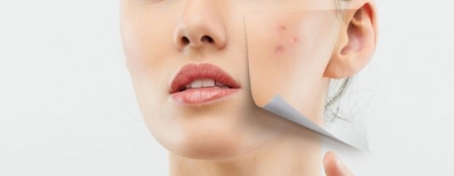 Can You Reduce the Size of Acne Scars?