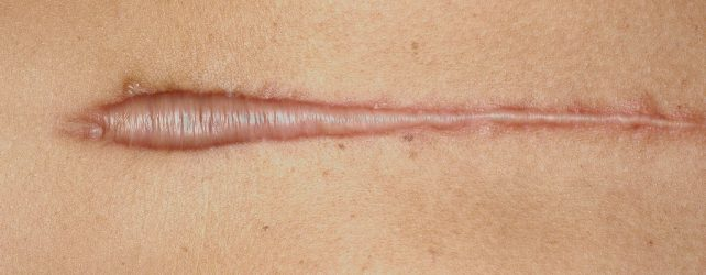 How Long Does it Take a Hypertrophic Scar to Heal?