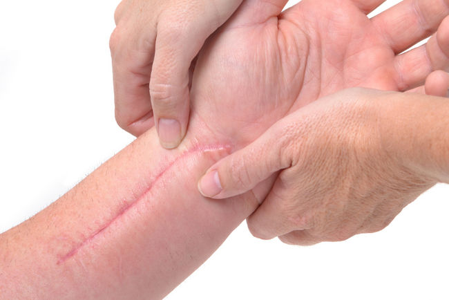 How Do You Soften Scar Tissue Scars And Spots