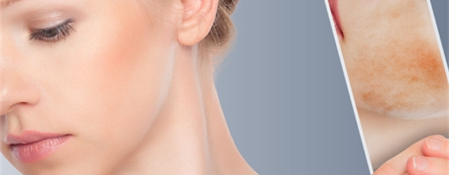 What is Facial Scar Revision?