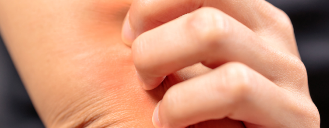 Why Do Scars Itch?